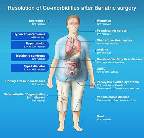 Bariatric Surgery Saudi Arabia | Obesity Surgery Saudi Arabia